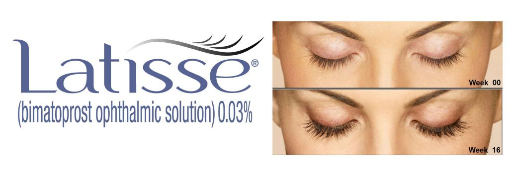 9e394c99d5a Eyes For Life offers Latisse® – the only FDA-approved treatment to grow  eyelashes…