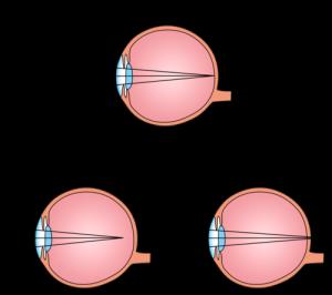 Myopia hyperopia astigmatism és kezelésük - Myopia és hyperopia kezelés
